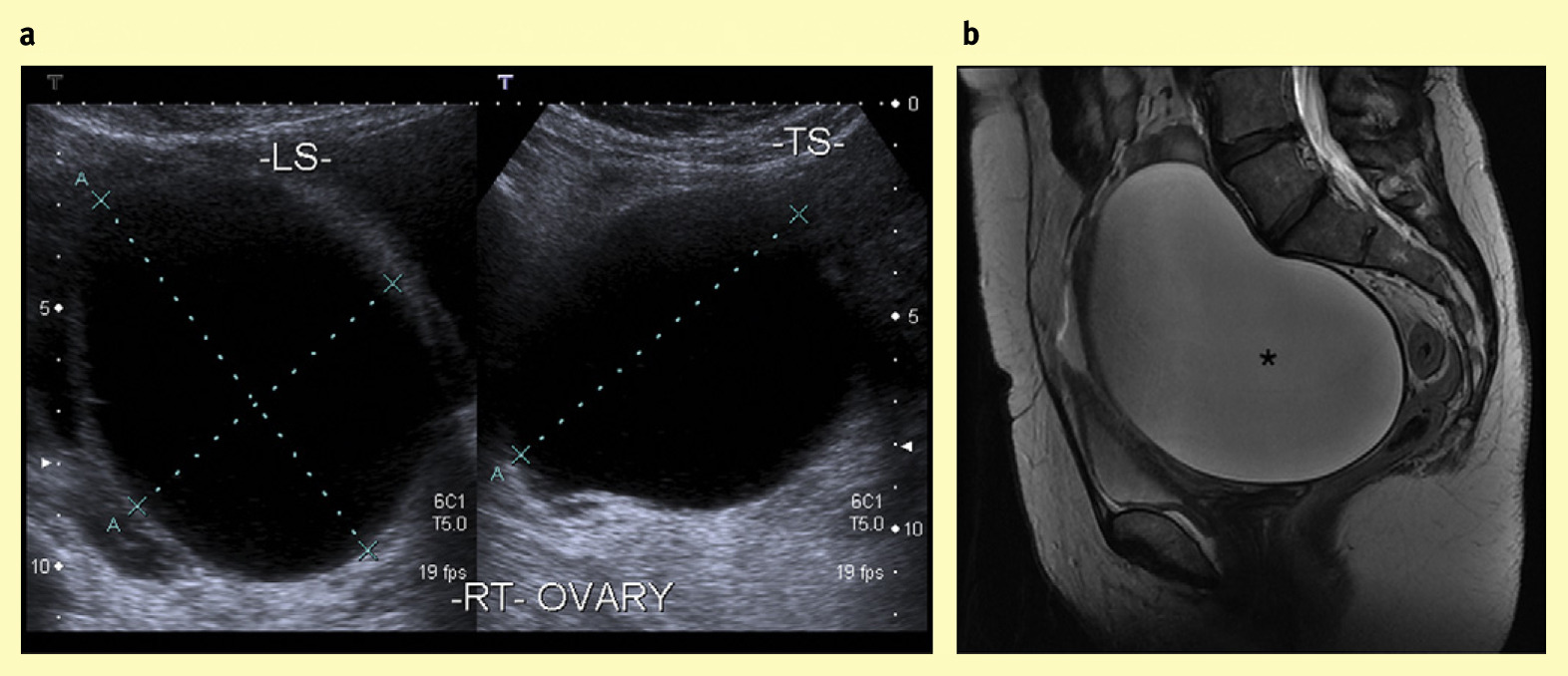 Imaging of the female pelvis obstetrics gynaecology and for Complex ovarian cyst with mural nodule